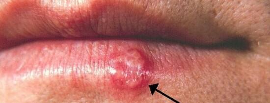 Herpesul oral? Un nou risc asociat acestui virus!