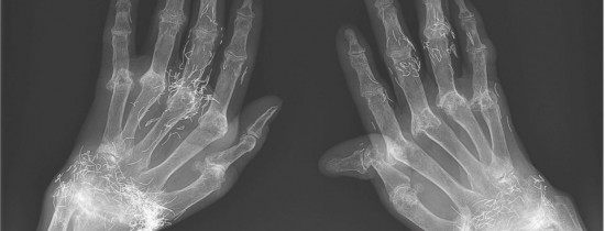 Caz medical bizar: o femeie are încheieturile pline de firicele de aur