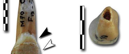 Reexaminarea unor dinţi ce aparţineau Neanderthalienilor a dezvăluit un aspect şocant din trecut
