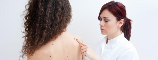 Tot ce este nevoie să ştii despre negi: tipuri, simptome şi tratament. Pot fi îndepărtaţi definitiv?